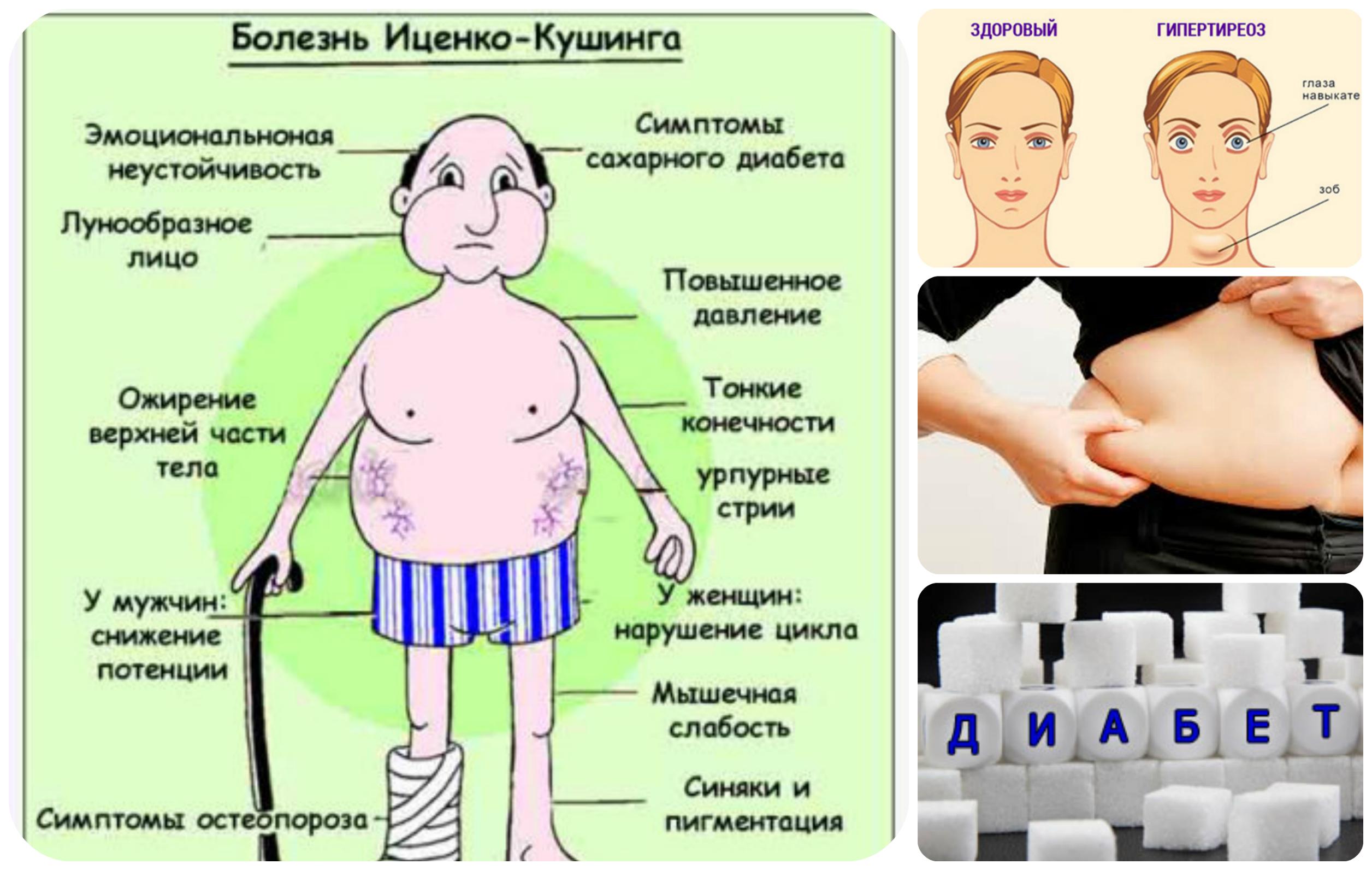 Гипоталамический синдром схема лечения