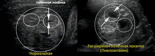 Норма лоханки почки у беременной 76