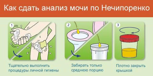 Анализ мочи по Нечипоренко при беременности - Страна Детства