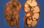 Формы и стадии туберкулеза почек, причины заболевания, симптомы, лечение