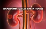 Характерные симптомы паренхиматозной кисты почки: способы диагностики и профилактики