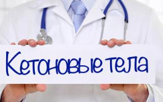 Насколько опасно наличие кетоновых тел в моче?