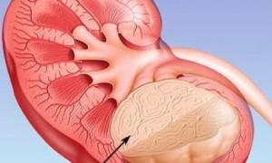 Виды и стадии уплотнений в почках: особенности лечения и диагностики