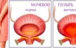 Хроническое воспаление мочевого пузыря: причины развития патологии и тактика лечения