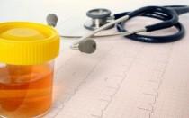 С чем связано появление мочи оранжевого цвета: диагностика и возможные патологии