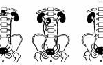 Особенности добавочной почки: виды аномалии и причины возникновения