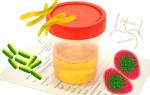 Причины появления бактерий в анализе мочи