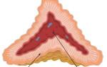 Виды и функции гормонов надпочечников: глюкокортикоиды и андрогены
