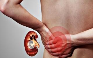 Способы лечения болей в почках по утрам: возможные причины и профилактические меры