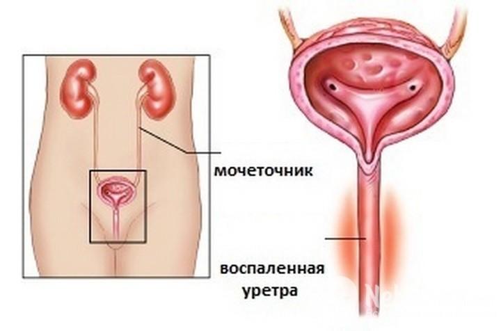 уретрит у женщин - схема