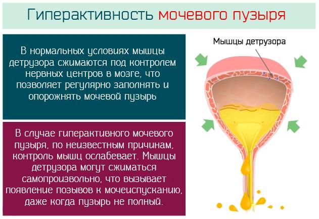определение гиперактивного мочевого пузыря