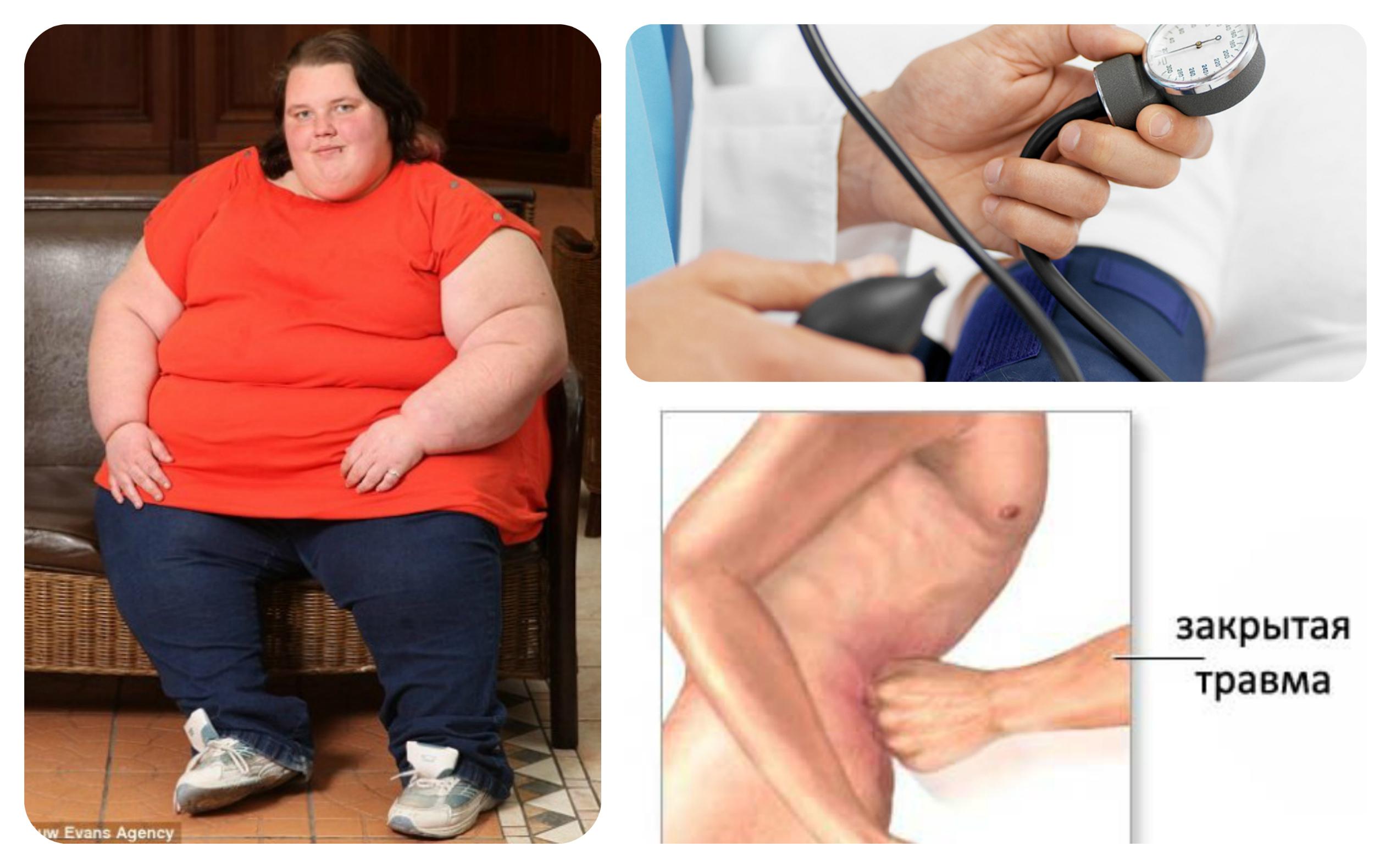 ожирение травмы живота гипертония