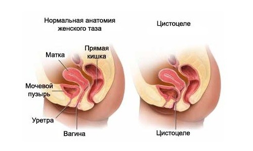 цистосцеле
