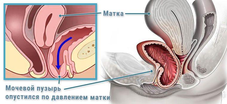 опущения мочевого пузыря