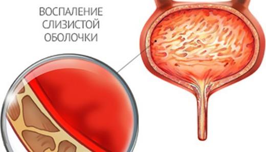 простуда мочевого пузыря
