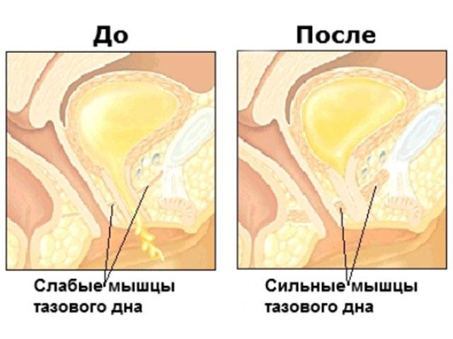 слабые и сильные мышцы тазового дна