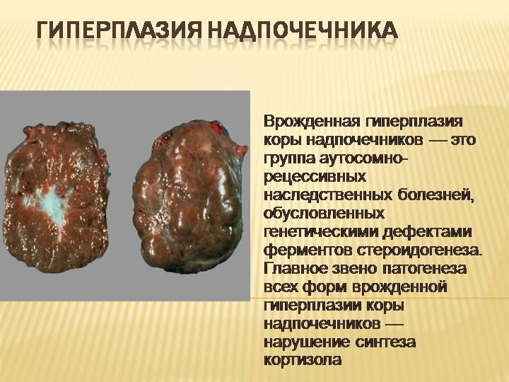 врожденная гиперплазия надпочечников