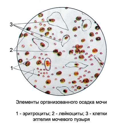 наличие эпителия и лейкоцитов в моче