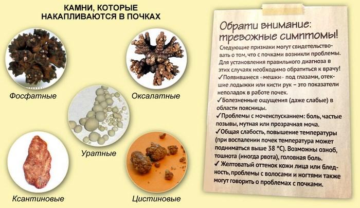 Типы коралловых камней