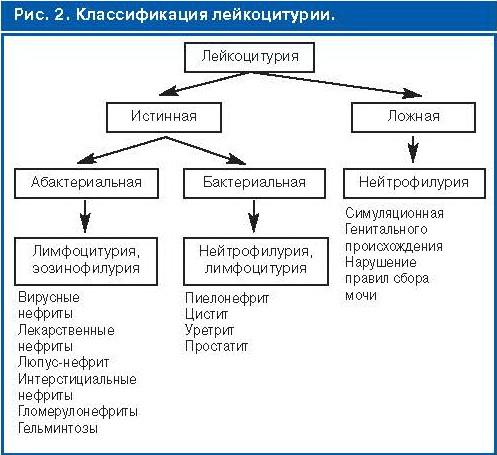 лейкоциты в моче что это значит - виды лейкоцитурии