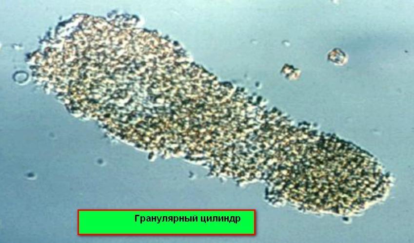 Цилиндры гиалиновые в моче единичные 16