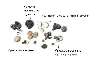 Виды камней в мочевом пузере