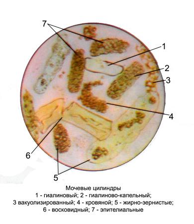 Цилиндры гиалиновые в моче единичные 17