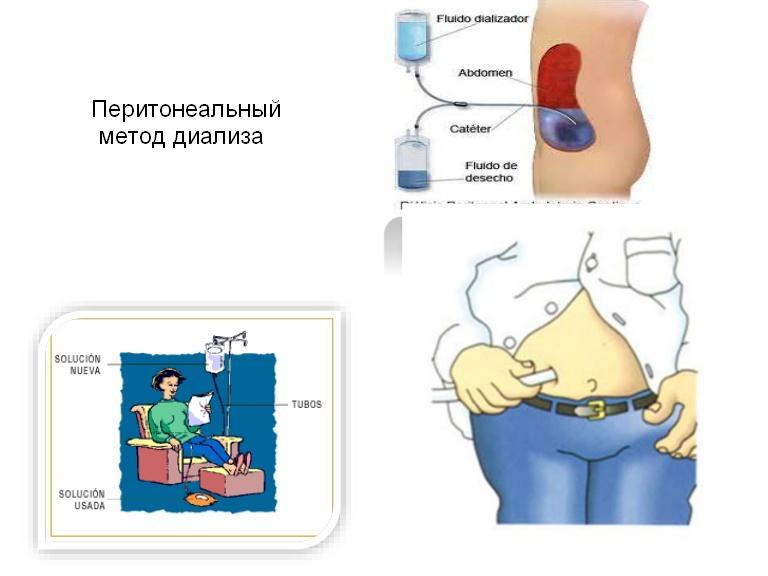 перитонеальный метод диализа