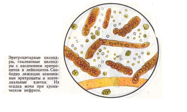 Цилиндры гиалиновые в моче единичные 20