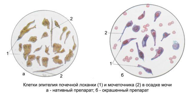 Количество эпителиальных клеток мочи