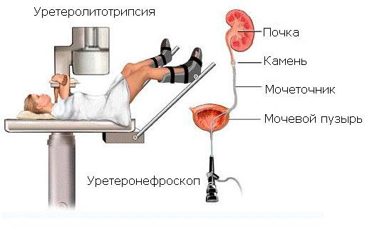 Лечение камней в мочевом пузыре