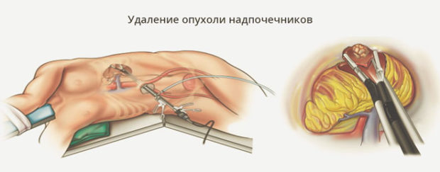 оперативное удаление опухоли надпочечника