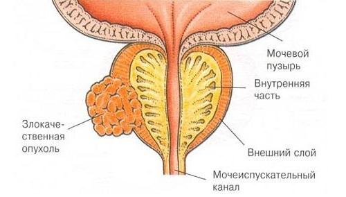 злокачественной опухоли предстательной железы