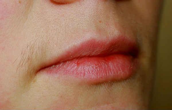 волосы над верхней губой у женщины