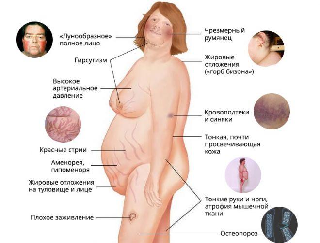 Симптомы синдрома Иценко-Кушинга