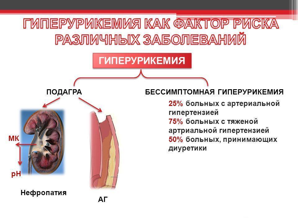 почечная гиперурикемия