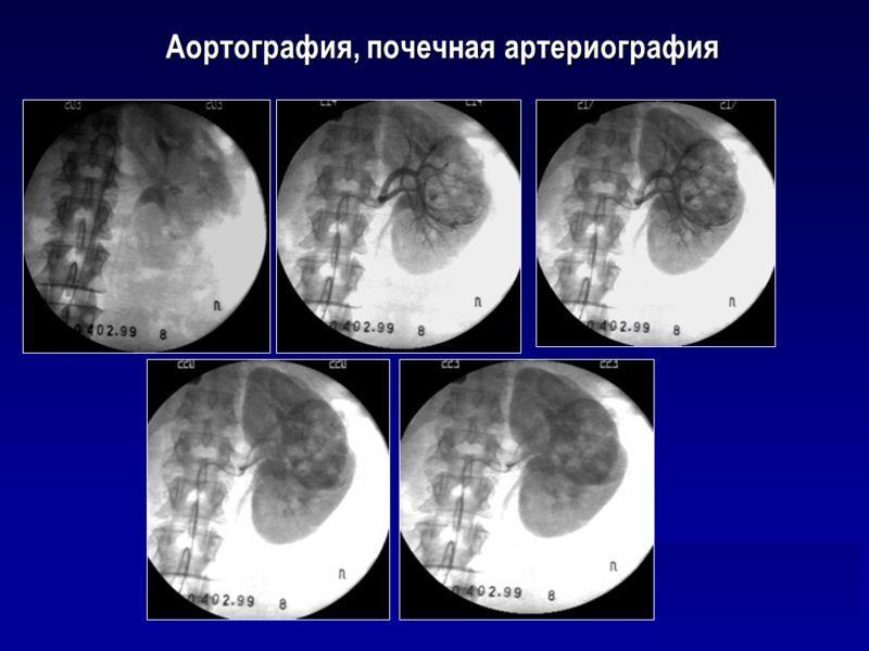 Почечная артериография