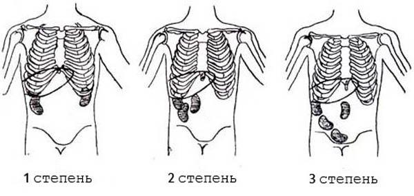 нефроптоз стадии