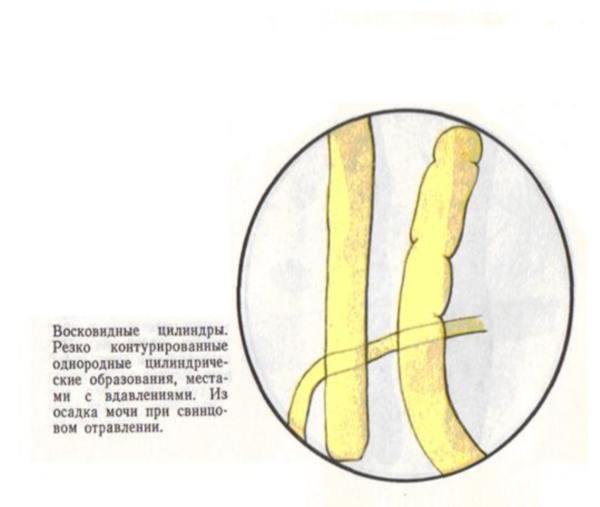 Цилиндры гиалиновые в моче единичные 18