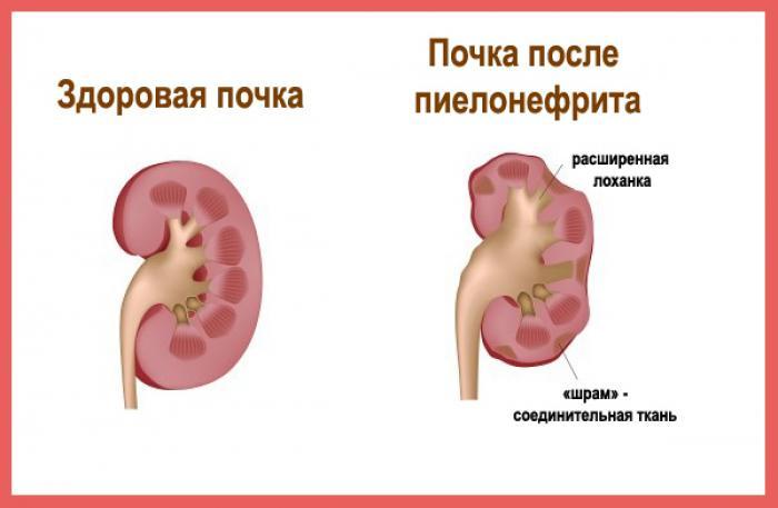 пиелонефрит