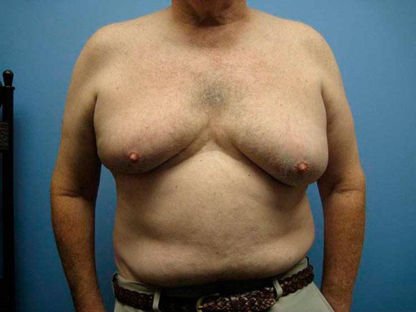 у мужчины большая грудь