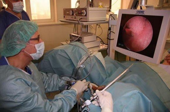 операционная цистоскопия