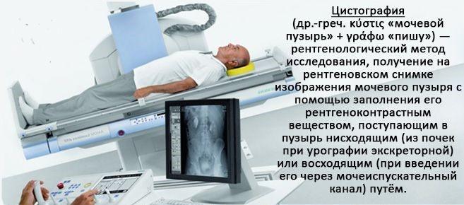 что такое цистография