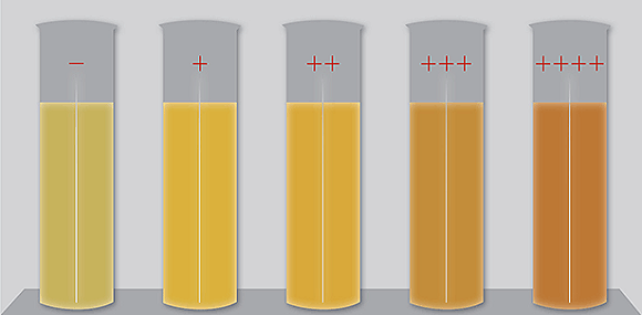 билирубин в анализе мочи