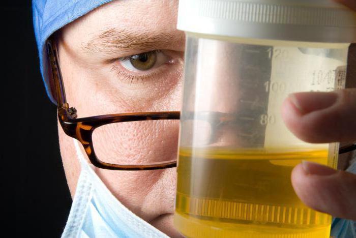 врач держит баночку с анализом
