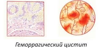 Геморрагическая форма цистита