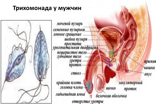 трихомонады у мужчин