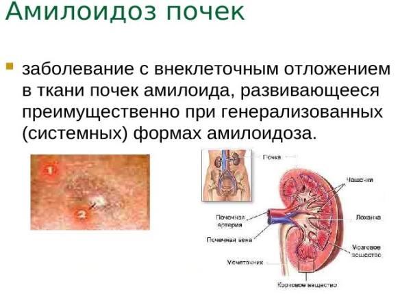 почечный амилоидоз