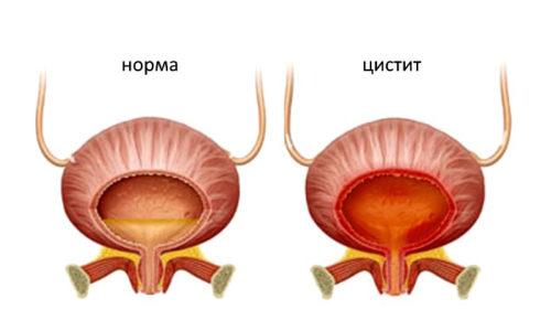 воспаление шейки мочевого пузыря при цистите