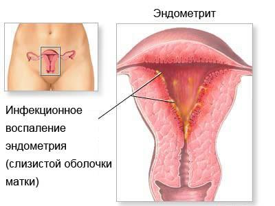 Метроэндометрит